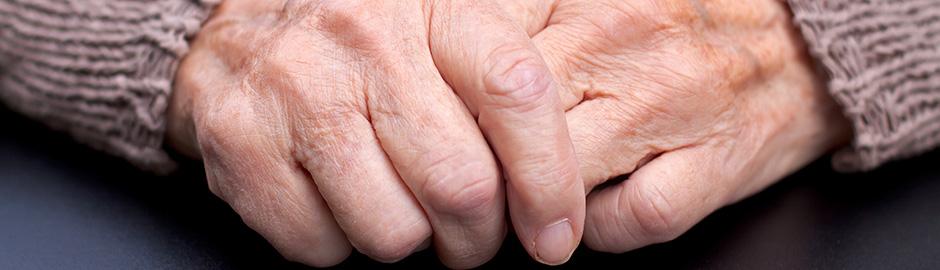 rheumatoid arthritis inflammation control